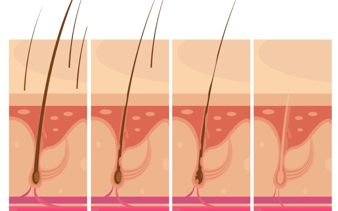Les doubles repousses et les poils incarnés